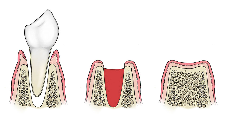 9 Important Facts About Wisdom Teeth And Tooth Removal Webdento