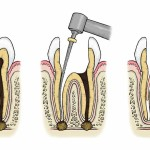7 important questions about the root canal procedure