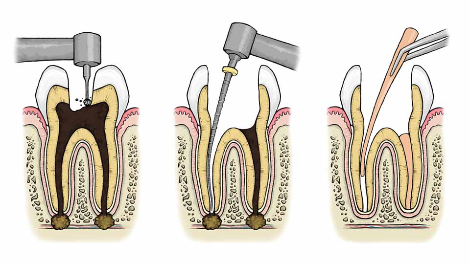 Root canal treatment illustration.