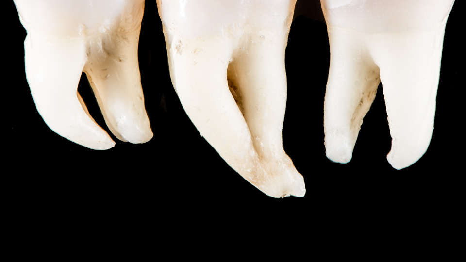 7 important questions about the root canal procedure - Webdento