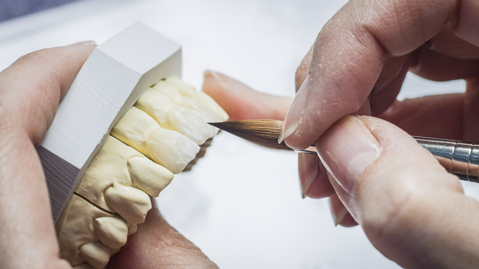 A dental technician fabricating a dental prosthesis.