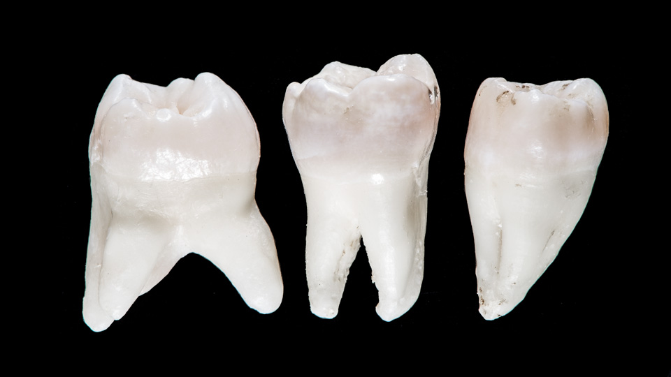 Different shapes of roots of teeth. A tooth with multiple roots can be difficult to remove.