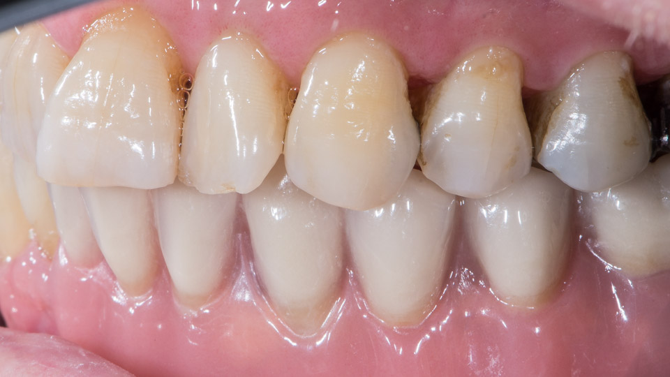 Before and after dental implant overdenture