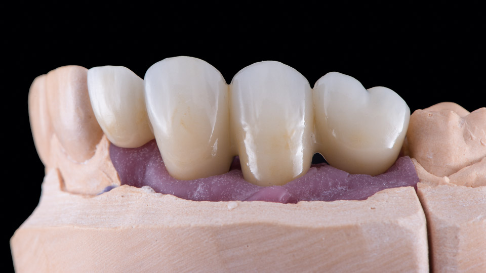 Astra Evolution dental implants