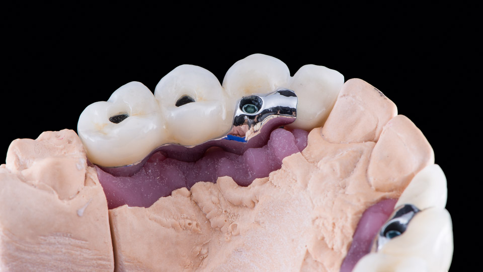 Beautiful dental implant bridge done by dental technician.