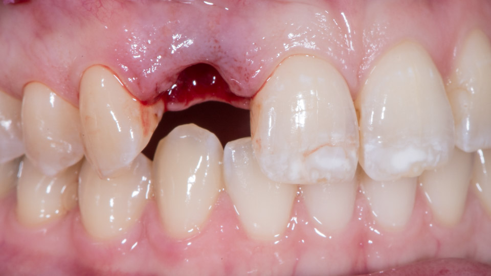 Dental trauma and missing tooth
