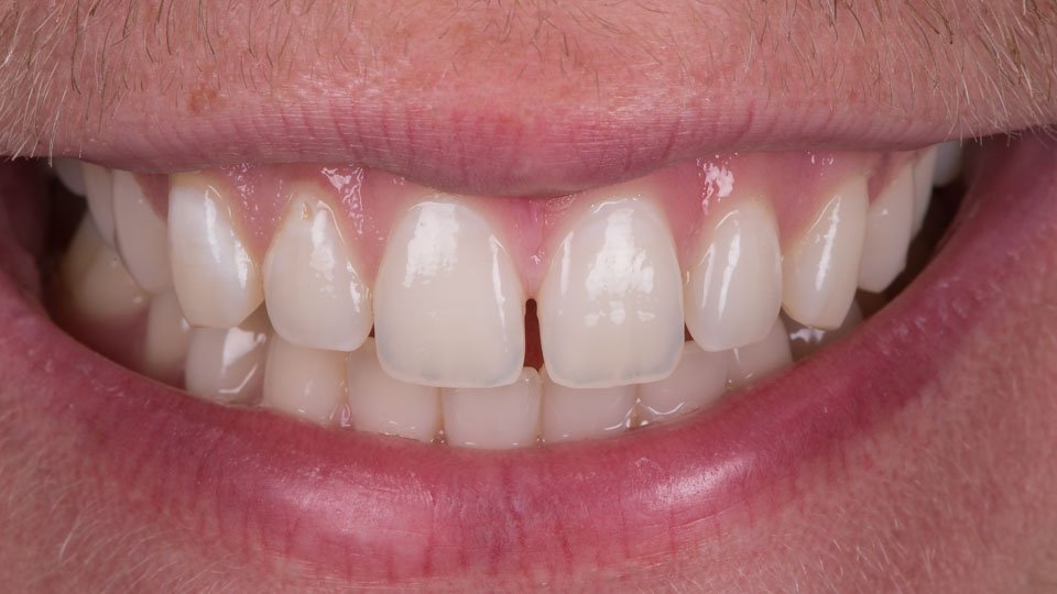 Bonded composite fillings in upper front teeth, made in Helsinki Finland.