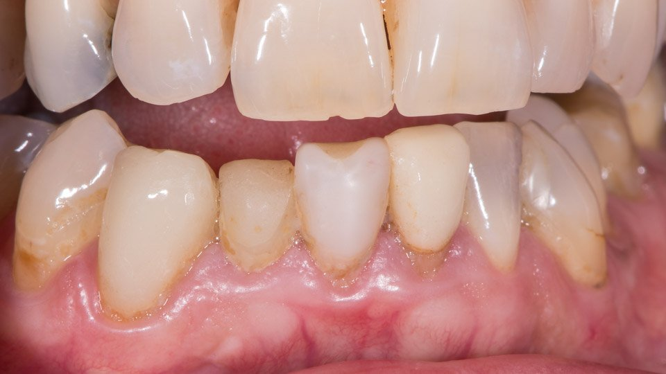Old bonded composite fillings