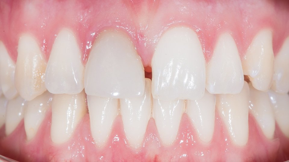 Discolored tooth and ceramic crown