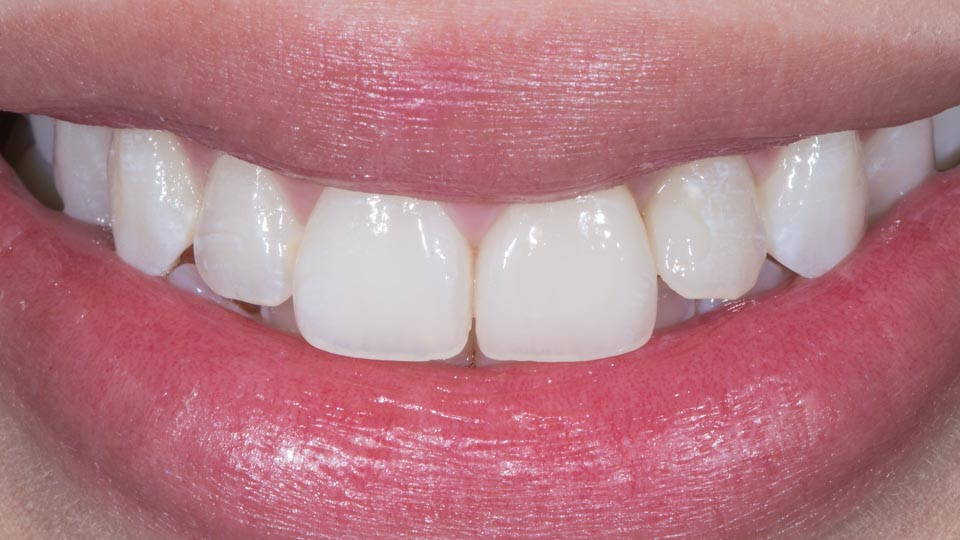 Before and after glass-ceramic dental crown