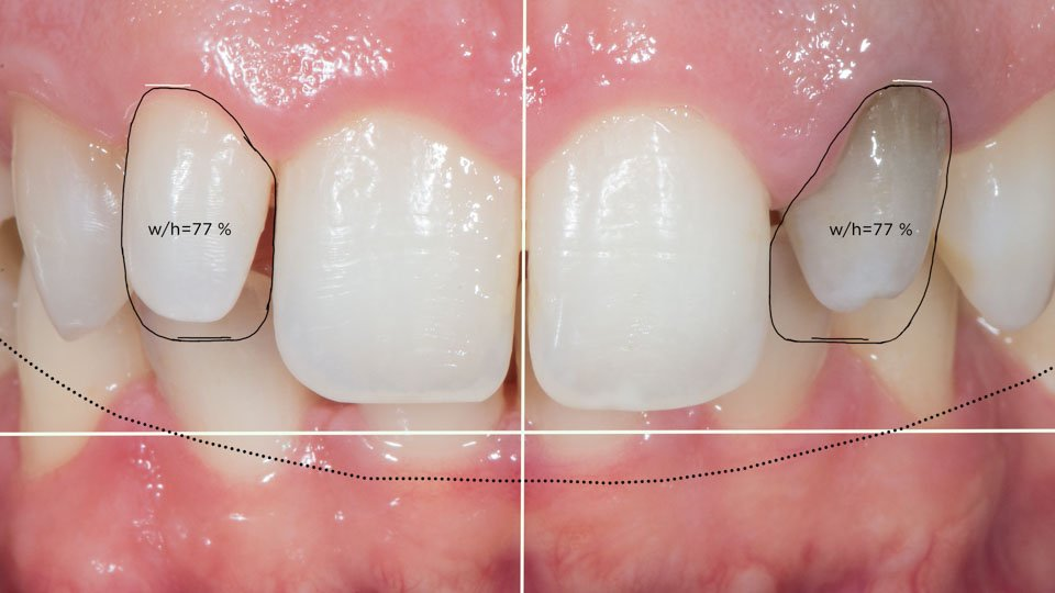 Smile design of front teeth before dental veneers.