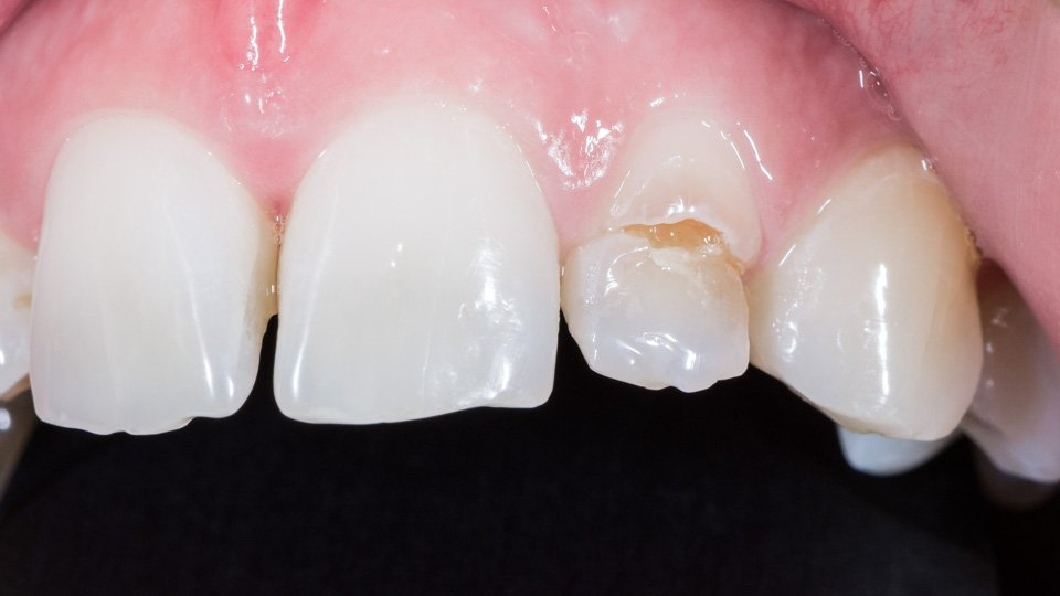 Tooth decay and cavity fixed with porcelain veneer