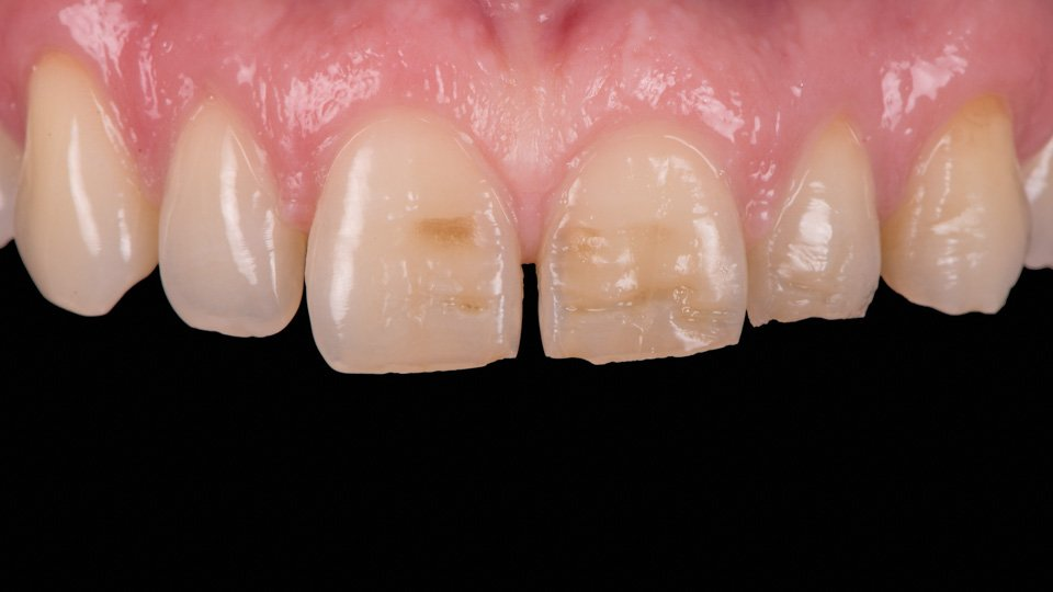 Bonded composite veneers to anterior teeth.