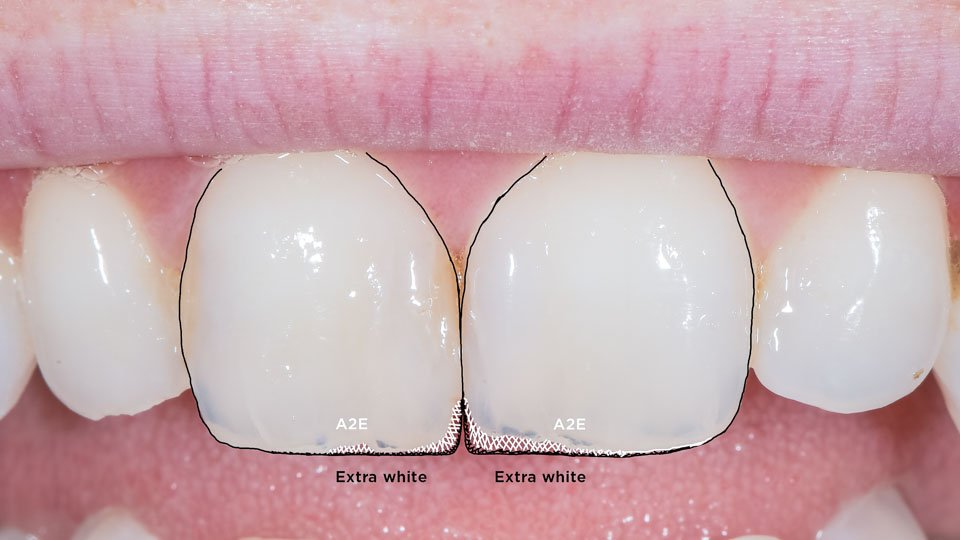Smile design of anterior teeth
