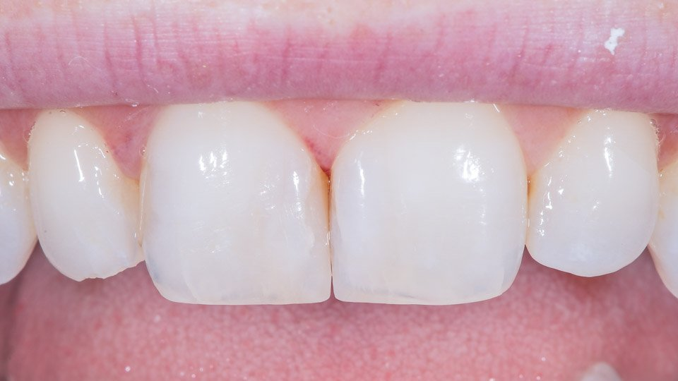 Before and after treatment of composite veneers