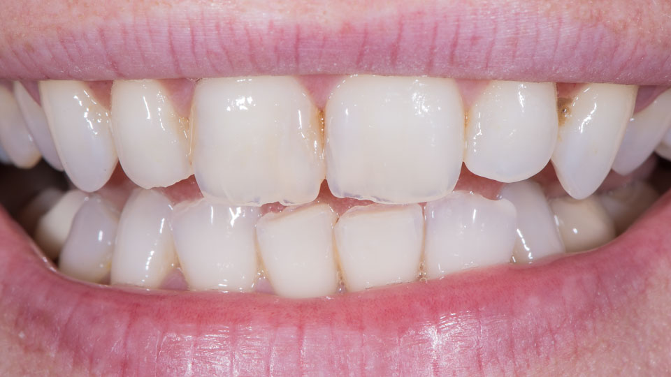 Worn and shortened teeth